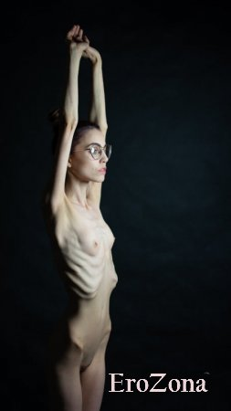 женщины анорексички голые